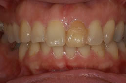 30代女性 『前歯の色が気になる』(オールセラミック)