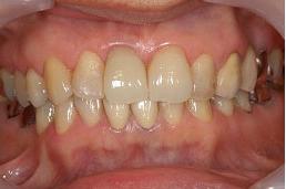 50代女性 『歯ぐきが黒くなってきた』(オールセラミック)