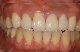 40代女性 『黄色くなってきた歯をきれいにしたい』(オールセラミック)