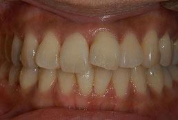 30代女性 『曲った前歯をきれいにしたい』(オールセラミック)