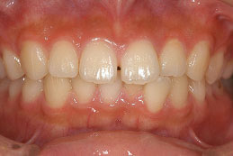 10代女性 『すきっ歯を直したい』(オールセラミック)