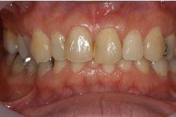 30代女性 『むし歯を治したい』(オールセラミック)
