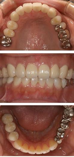 30代女性『どんどん歯が悪くなってきました』(右下の奥歯2本)