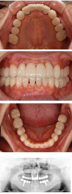 30代女性『奥歯のかみ合わせが悪く前歯がダメになってしまった』(前歯2本、奥歯2本)