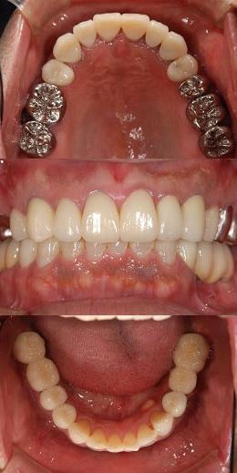 40代男性『奥歯がなくて、食べ物がかめない』(奥歯4本)