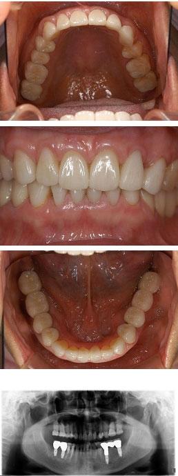 60代女性『奥歯に入れ歯をしなかったため、前歯が欠けてきた』(下の左右4本)