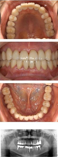 60代女性『奥歯の入れ歯が合わず、大変辛い思いをしてきた』(上2本、下4本)