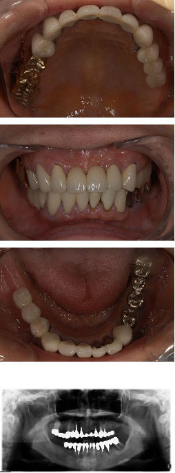 60代女性『長いブリッジが歯をダメにしてしまった』(上3本、下6本)